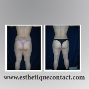 liposuccion lipoaspiration