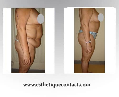 plastie abdominale en tunisie