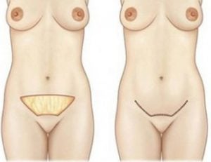 mini lifting abdominal