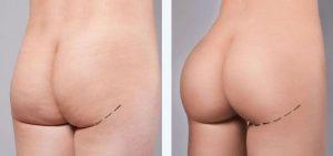 Implants ou prothèses fesses