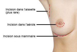 Cicatrice prothèse mammaire