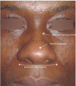 Nez africain rhinoplastie ethnique