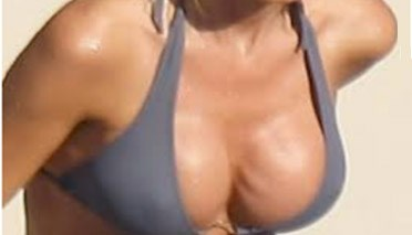 Prothèses mammaires vagues plis